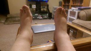 Swollen Pregnancy Feet